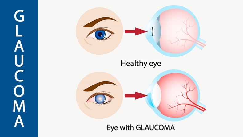 Glaucoma eye, pressure, optic, nerve, blindness, glaucoma, - Vector