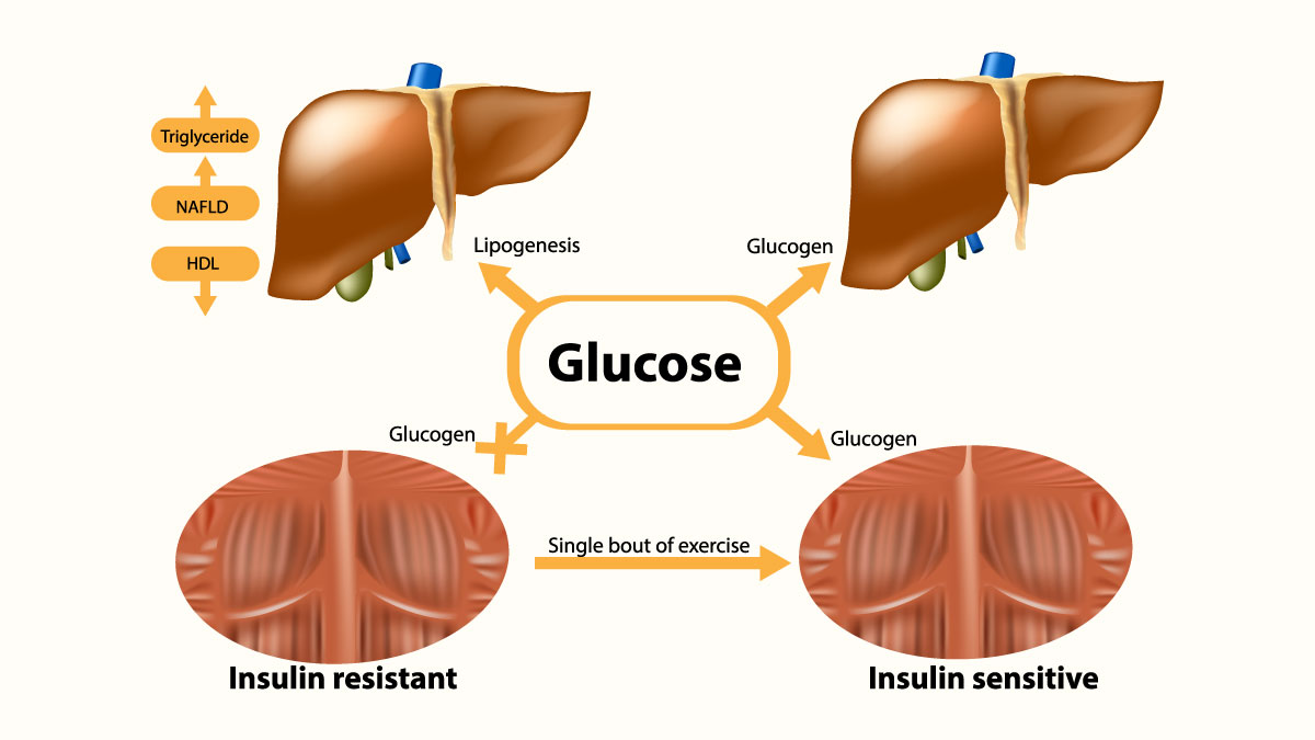 Glycogen in liver and muscle. Insulin sensitive and Insulin resistant. - Vector