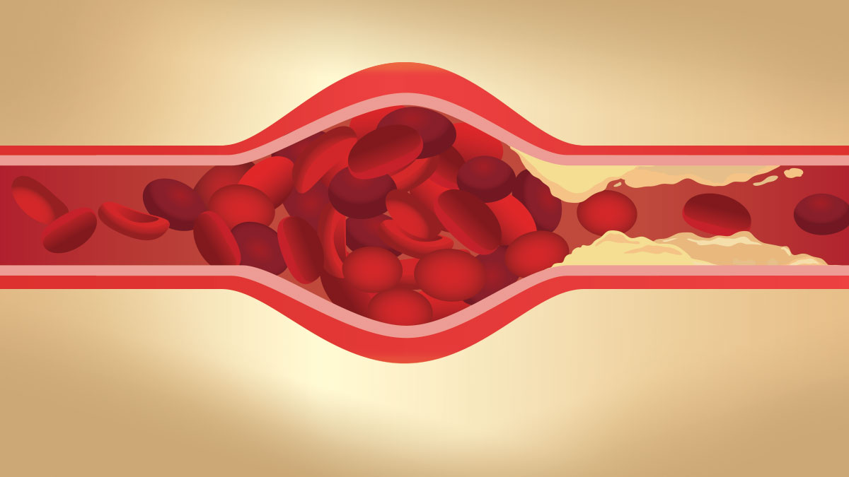Arteries swelling because blood clot by fat cloged made blood flow slowly. Illustration about danger of Cholesterol.