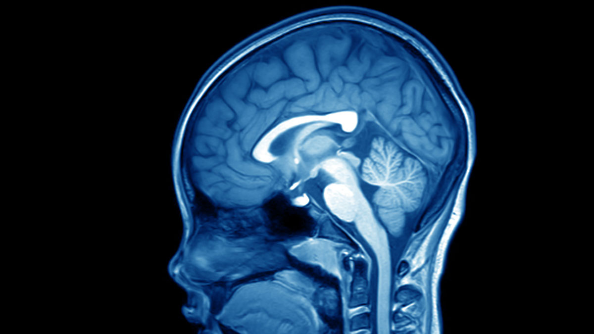 magnetic resonance image (MRI) of the brain human