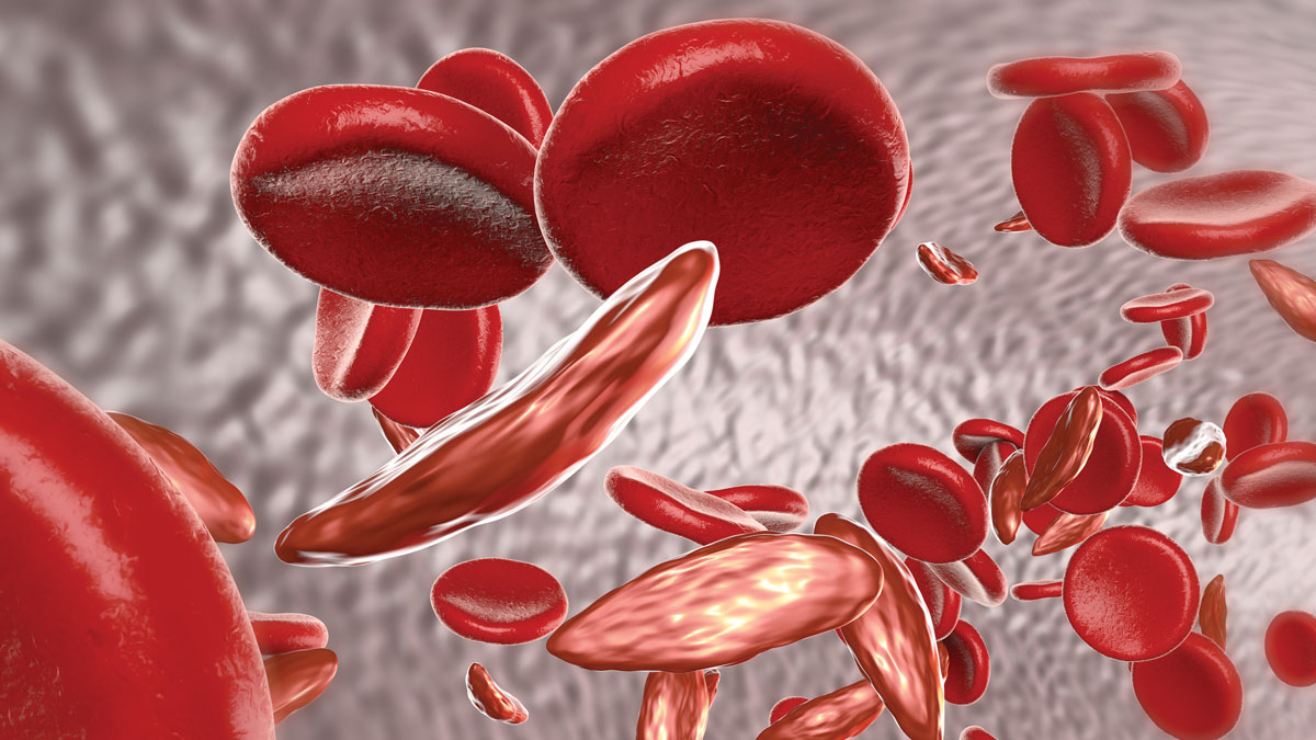 Sickle cell anemia, 3D illustration showing blood vessel with normal and deformated crescent-like red blood cells
