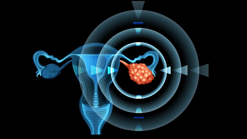 OvarianCancer_1200x675
